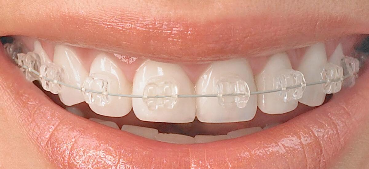 clinica-ortodoncia-jaen-dr-rafael-gallardo-tratamientos-ortodoncia